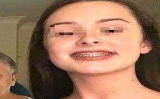 Gia đình - Bệnh nhân đột quỵ vì bị rơi niềng răng vào tim