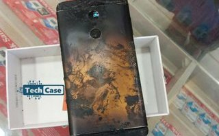 Cuộc sống số - Xiaomi Redmi Note 4 nổ cháy đùi người dùng