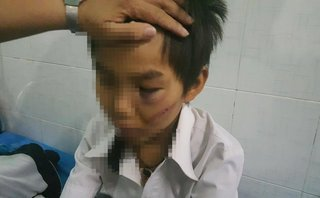 An ninh - Hình sự - Đắk Lắk: Làm rõ vụ cháu bé 11 tuổi bị bố đánh đa chấn thương