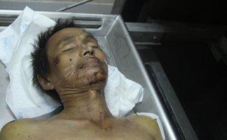 Chính trị - Xã hội - Tìm thân nhân người đàn ông tử vong với nhiều vết thương trên mặt