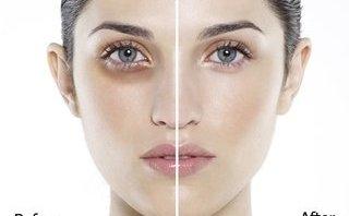 Làm đẹp - 9 cách loại bỏ quầng thâm mắt hiệu quả