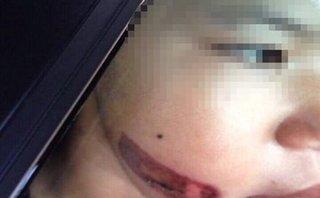 Xã hội - Bé gái 7 tuổi  bị mẹ kế bạo hành dã man: Nỗi đau 'bánh đúc có xương'