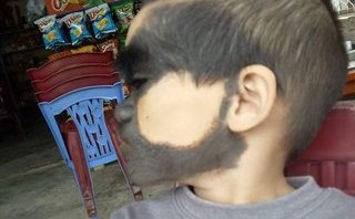 Xã hội - Khuôn mặt dị thường, đáng thương của cháu bé ở Yên Bái