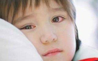 Sức khỏe - Bệnh đau mắt đỏ: Cách phòng chống hữu hiệu nhất