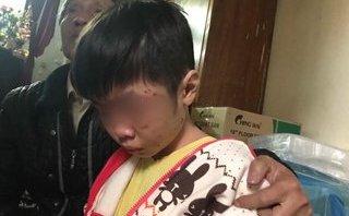 Xã hội - Bé trai 10 tuổi bị bạo hành nghỉ học gần 2 năm nhưng hồ sơ vẫn ở trường