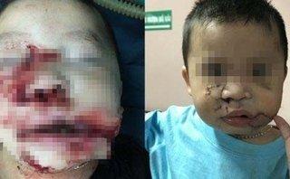 Tin nhanh - Khuôn mặt bị chó cắn giập nát của bé trai 2 tuổi được tái tạo sau 3 giờ phẫu thuật