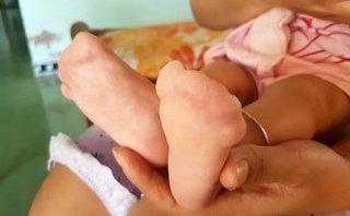 Sức khỏe - Sự nguy hiểm của căn bệnh mà con trai NSƯT Quốc Tuấn mắc phải