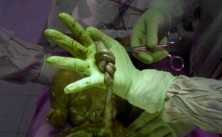 Xã hội - Phát hiện dây rốn thắt nút kỳ lạ sau khi mổ cấp cứu cho bà bầu 18 tuổi