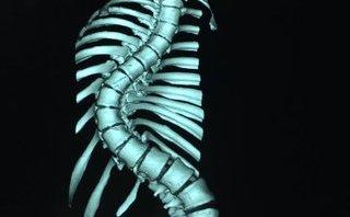 Xã hội - Phẫu thuật cho thiếu nữ có xương sống cong vẹo hình rắn