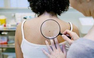 Các bệnh - 9 thói quen nguy hiểm gây ung thư da