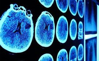 Các bệnh - 5 triệu chứng ung thư não ai cũng phải biết