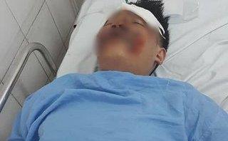 Xã hội - Hà Nội: Trích xuất camera tìm tài xế ô tô tông 2 sinh viên rồi bỏ trốn