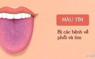 Tư vấn - Màu sắc lưỡi tiết lộ các vấn đề sức khỏe