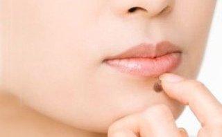 Các bệnh - Cẩn thận bệnh từ nốt ruồi
