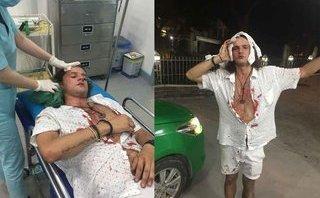 Cafe8 - Vụ khách Tây bị đánh nhập viện ở Hội An: Ra dáng chủ nhà