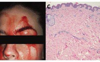 Dân sinh - Chứng bệnh lạ khiến cô gái bị chảy máu mặt khi tâm lý căng thẳng