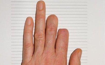 Cuộc sống số - Bé gái 7 tuổi mọc lại ngón tay sau khi bị đứt