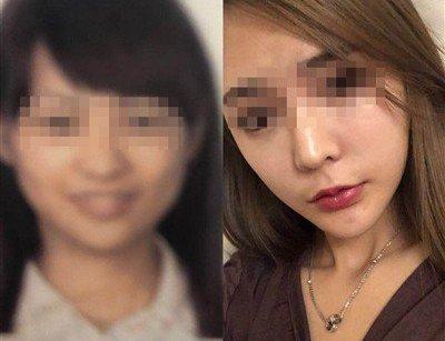 Gia đình - Thiếu nữ lỡ chuyến bay vì gương mặt quá khác lạ sau phẫu thuật thẩm mỹ