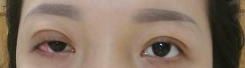 Làm đẹp - Hậu nhấn mí, cô gái trẻ vĩnh viễn không thể nhắm mắt