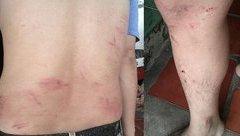 Hồ sơ điều tra - An Giang: Xác minh, điều tra vụ người trả lời phỏng vấn VTV9 bị hành hung