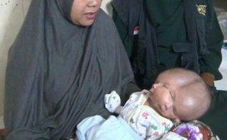 Cộng đồng mạng - Kỳ lạ bé sơ sinh có 2 mặt, 2 bộ não ở Indonesia