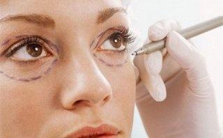 """Cần biết - Những lưu ý """"quan trọng"""" khi lấy mỡ bọng mắt"""