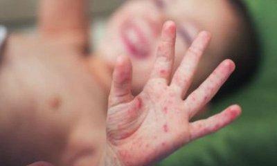 Hà Nội: Yêu cầu không đơn vị nào được giấu dịch sởi và sốt xuất huyết
